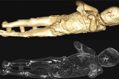 Bên trong xác ướp thạch cao của cậu bé 4 tuổi. Ảnh Discovery News