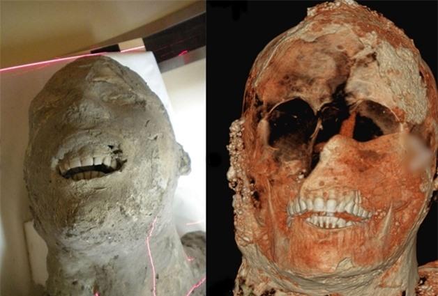 Ảnh chụp cắt lớp của 1 xác ướp thạch cao Pompeii