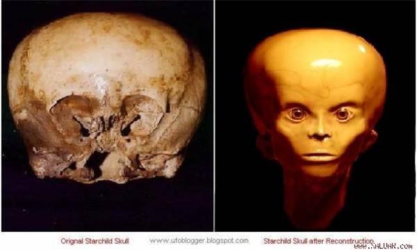 Hộp sọ và hiện tượng kỳ lạ minh chứng về sự sống ngoài hành tinh