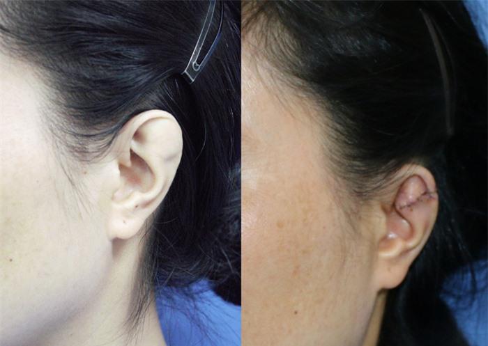 Hơn 30 năm sống trong mặc cảm vì đôi tai khác thường - Ảnh 1.
