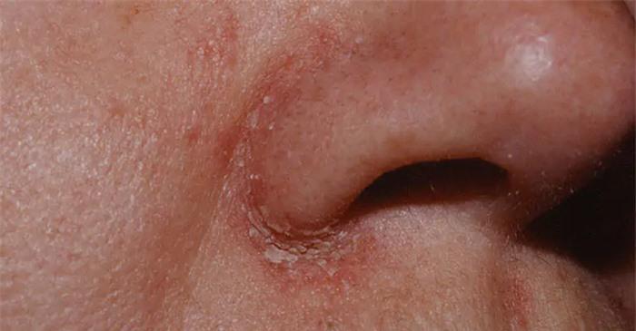 Bác sĩ da liễu cảnh báo bệnh về da dễ bị chẩn đoán nhầm, gây khó khăn trong điều trị - Ảnh 1.