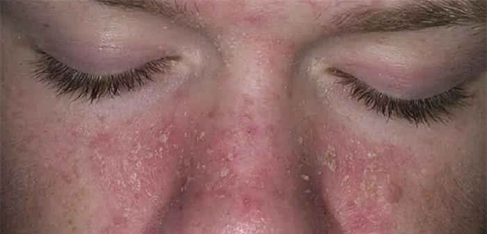 Bác sĩ da liễu cảnh báo bệnh về da dễ bị chẩn đoán nhầm, gây khó khăn trong điều trị - Ảnh 2.