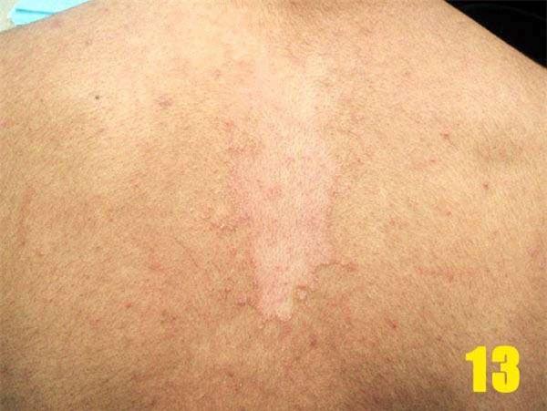 Bác sĩ da liễu cảnh báo bệnh về da dễ bị chẩn đoán nhầm, gây khó khăn trong điều trị - Ảnh 3.
