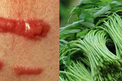 5 đại kỵ khi ăn rau muống gây ngộ độc, hại thận