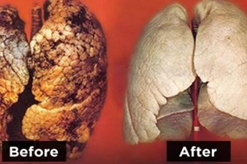 Ngăn ngừa ung thư phổi bằng tuyệt chiêu đặc biệt ít ai ngờ