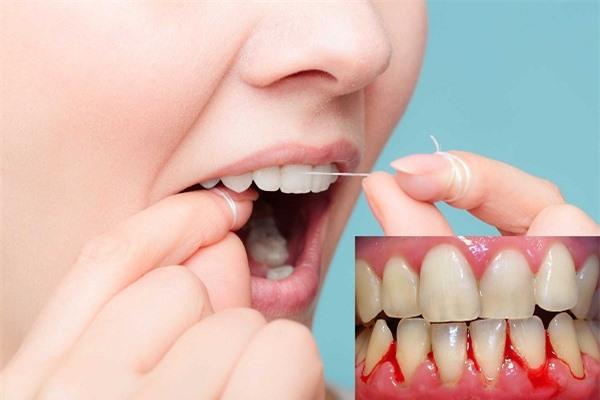 Dùng chỉ nha khoa vệ sinh răng miệng cẩn thận kẻo nhiễm trùng nướu