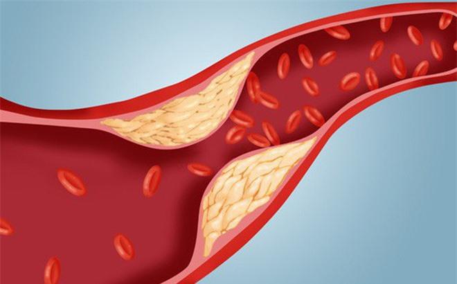 Làm sạch mạch máu chỉ bằng cách dùng tỏi và chanh