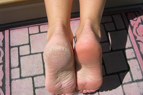 Trị nứt gót chân bằng cách dùng mật ong