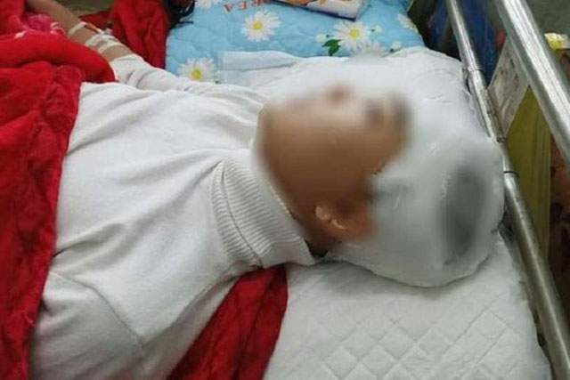Học sinh Phan Thanh Lâm bị thương vùng đầu đang được chăm sóc, điều trị tại Bệnh viện Đa khoa tỉnh Thanh Hóa.