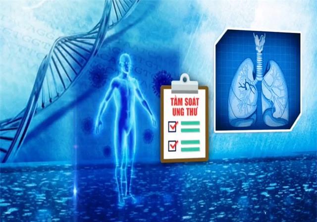 Tiến bộ mới trong điều trị ung thư phổi - Ảnh 1.