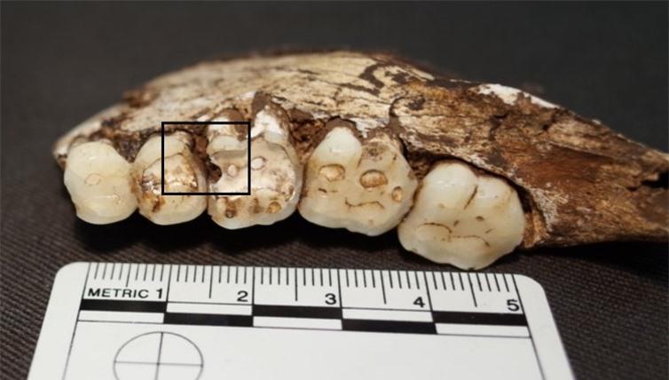 Dù không ăn đường, uống nước có ga nhưng người cổ đại vẫn bị sâu răng? - 2