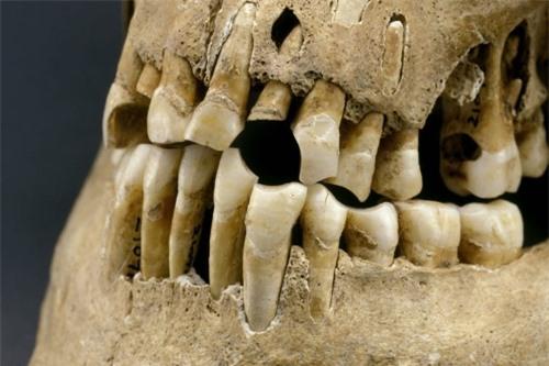 Dù không ăn đường, uống nước có ga nhưng người cổ đại vẫn bị sâu răng? - 3
