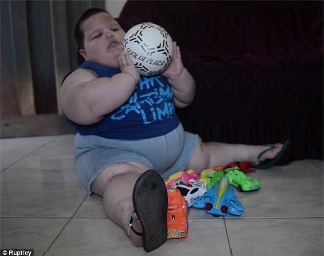 Cậu bé 3 tuổi nặng 70kg vì mắc bệnh lạ