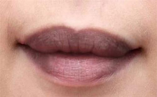 môi thâm