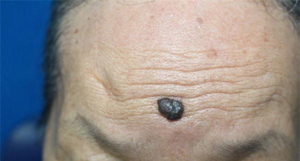 Nốt ruồi có những biểu hiện này cần nghĩ ngay tới ung thư