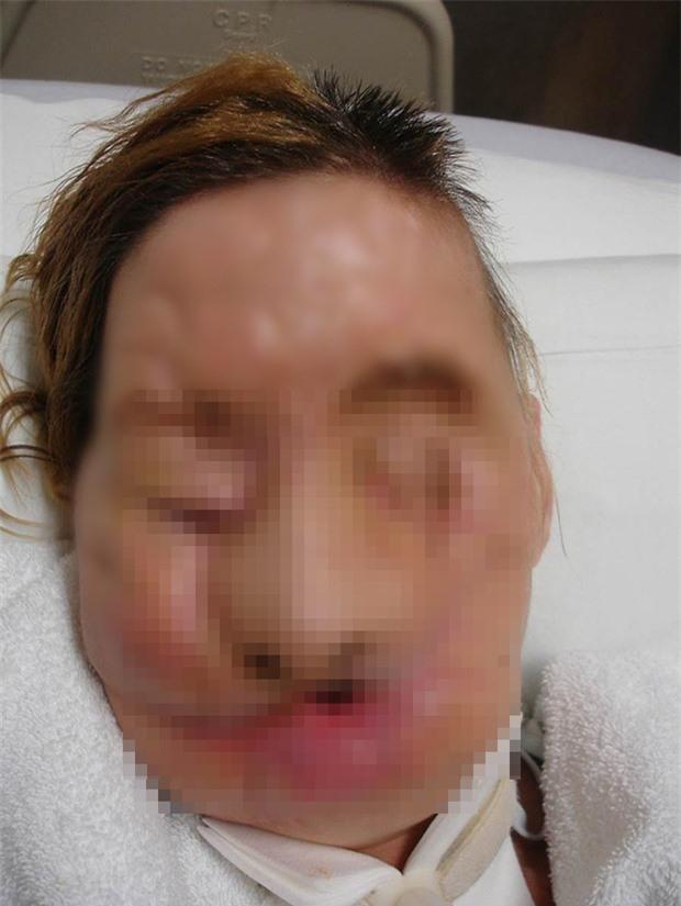 Đi làm giúp việc nhà người quen, người phụ nữ bị tinh tinh cào mặt đến mức không thể nhận ra, nhiều năm sau dung mạo của cô thay đổi kinh ngạc - Ảnh 4.