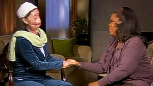 Đi làm giúp việc nhà người quen, người phụ nữ bị tinh tinh cào mặt đến mức không thể nhận ra, nhiều năm sau dung mạo của cô thay đổi kinh ngạc - Ảnh 5.