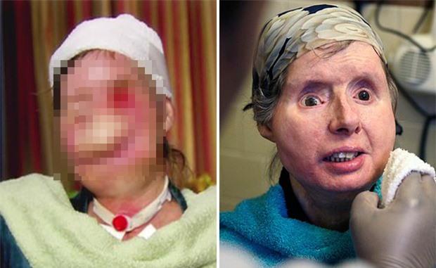 Đi làm giúp việc nhà người quen, người phụ nữ bị tinh tinh cào mặt đến mức không thể nhận ra, nhiều năm sau dung mạo của cô thay đổi kinh ngạc - Ảnh 6.