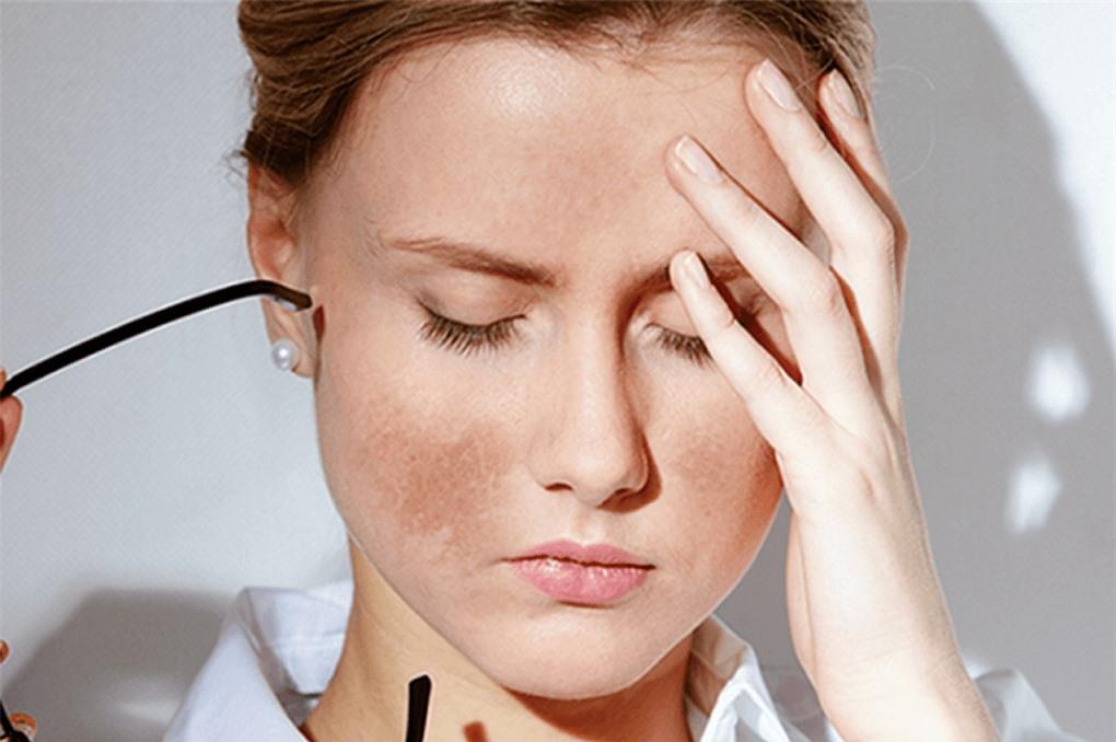 Yếu tố bên ngoài ảnh hưởng như thế nào đến làn da?