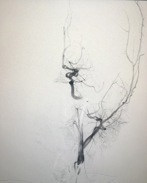 Chụp trên hình ảnh DSA cho thấy mạch máu bệnh nhân T bị tắc