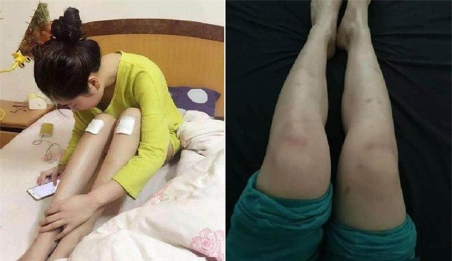 Diễn viên quần chúng bị dẫm đạp và thực tế tàn khốc ở phim trường Trung Quốc - Ảnh 4.