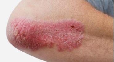 Tình trạng da khô, sần sùi khi bị vảy nến.