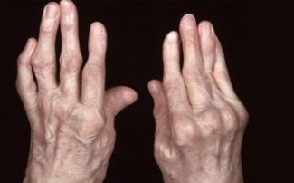 Viêm khớp dạng thấp có nguyên nhân do rối loạn miễn dịch và xương khớp thiếu dưỡng chất.