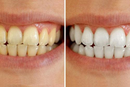 Cao răng tróc ra từng mảng, răng ố vàng đến mấy cũng trắng như bọc sứ chỉ với nguyên liệu vài nghìn này!