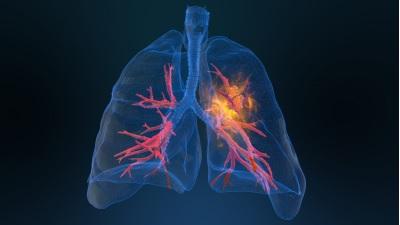 U phổi là bệnh lý nguy hiểm.