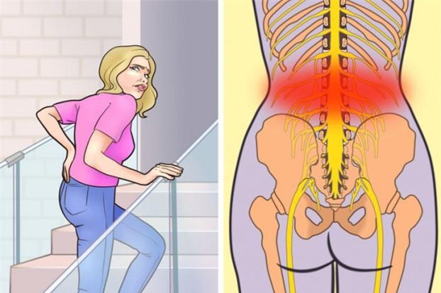 7 thói quen có thể khiến bạn bị đau lưng dưới và cách phòng tránh 5