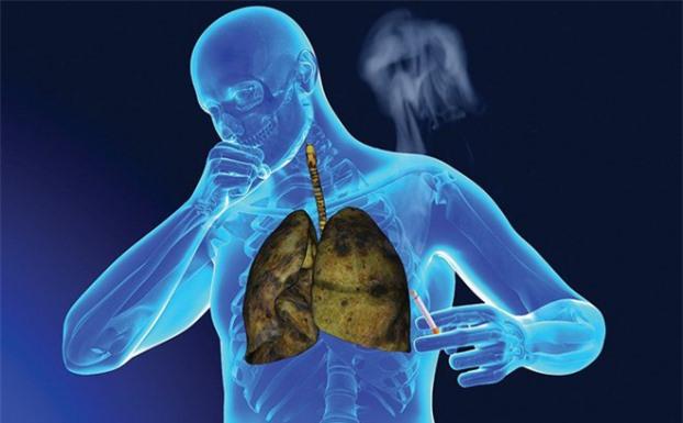 2 dấu hiệu khi ho cảnh báo ung thư phổi, nhưng hầu hết đều bỏ qua thời điểm vàng đi khám 1