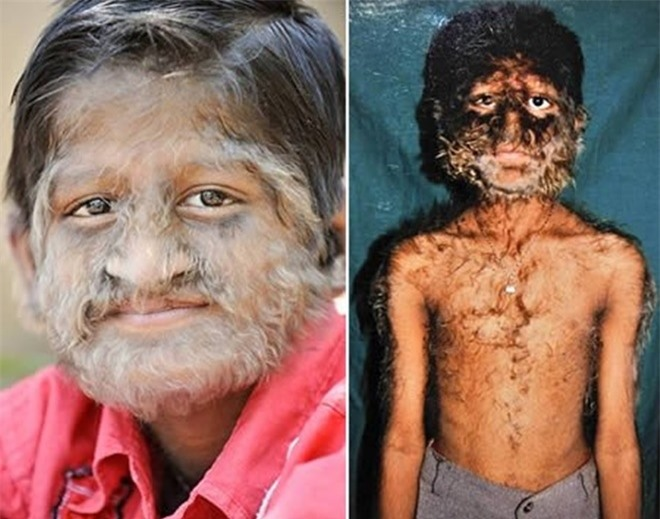 Những căn bệnh kỳ lạ nhất thế giới  - 3