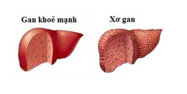 Gan nhiễm mỡ có thể gây ra xơ gan nếu không được xử lý kịp thời.