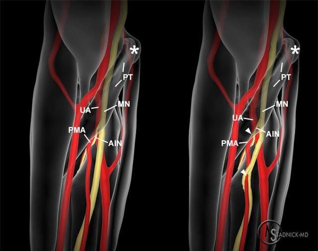 Loài người vẫn đang tiếp tục tiến hóa, bạn có thể có thêm một động mạch trong cơ thể và nó đang phát triển rất nhanh chóng - Ảnh 1.