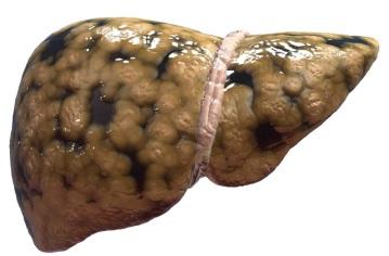 Hình ảnh lá gan bị nhiễm mỡ.