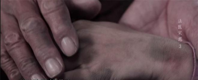 Thảm án nhuộm da người chết: Lão nông bế thi thể con gái đi kêu oan, chuyên gia lần theo manh mối - Tất cả vì 1 quả dưa! - Ảnh 1.