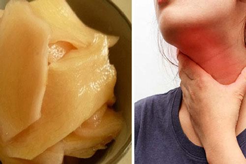 Món ăn chữa dứt điểm chứng trào ngược dạ dày, ngăn ngừa ung thư thực quản