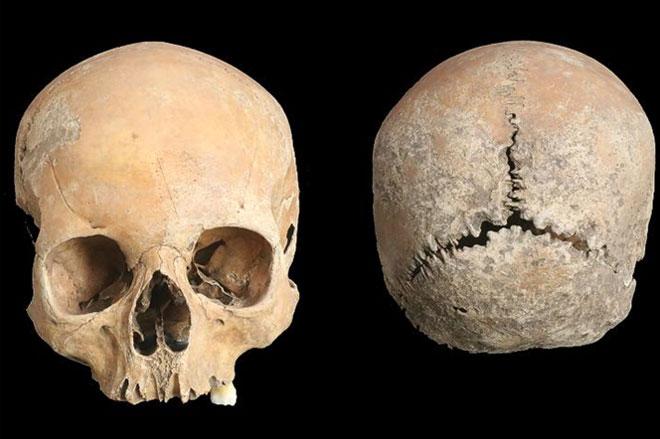 Ám ảnh hộp sọ thiếu nữ cổ đại bị cắt mũi, môi, gọt da đầu