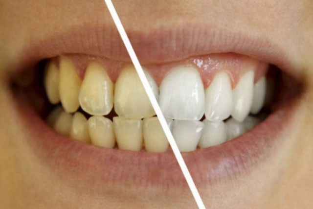 Cách đơn giản để giải quyết răng ố vàng bạn phải biết