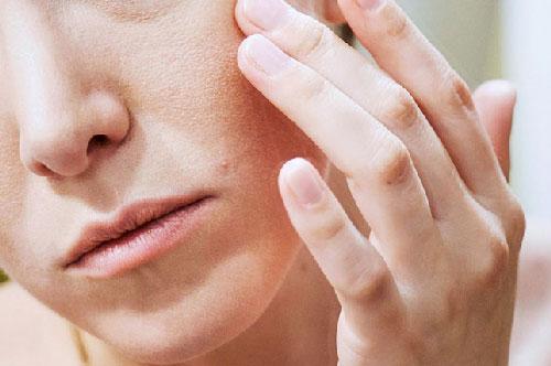 Cách để da không bị nổi mụn trong ngày hè