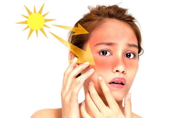 Bạn đã biết cách chống tia UV?