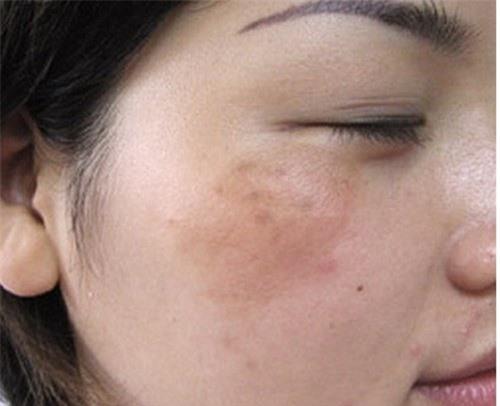 Bạn có biết tại sao mùa đông da vẫn bị nám?
