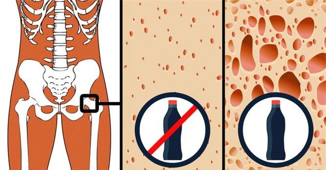 9 thực phẩm có thể bí mật phá hủy cơ thể bạn ảnh 9