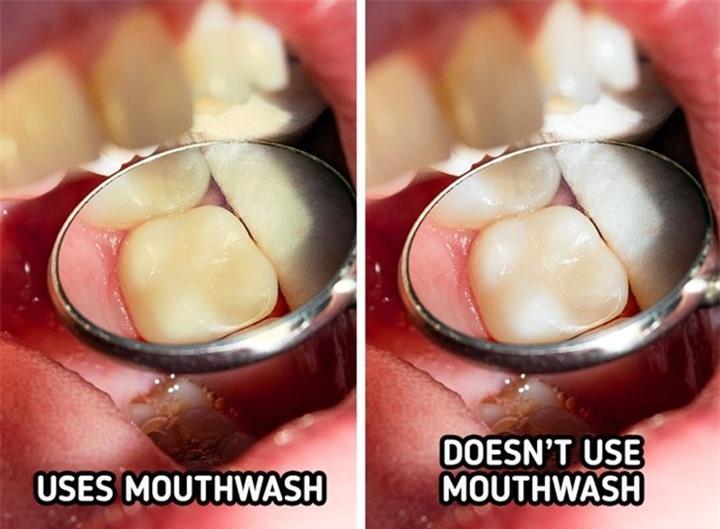 6 thói quen khiến răng bạn ố vàng - 3