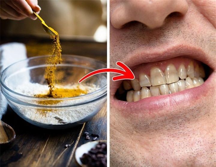 6 thói quen khiến răng bạn ố vàng - 5