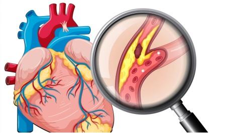 Suy thận dễ biến chứng gây ra các bệnh lý tim mạch.