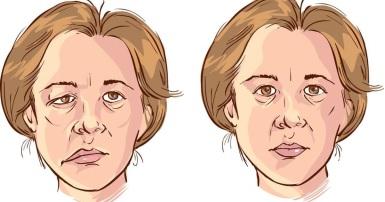 Méo miệng (ảnh trái) - Di chứng thường gặp ở người đột quỵ não.