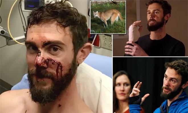 Bị sư tử tấn công, ai cũng tưởng người đàn ông sẽ bỏ mạng nhưng chuyện diễn ra sau đó khiến tất cả kinh ngạc - Ảnh 1.
