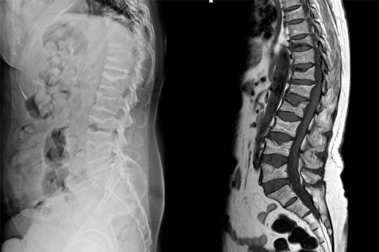 Đau lưng đi kèm 8 dấu hiệu này, cơ thể bạn đang gặp nguy 6