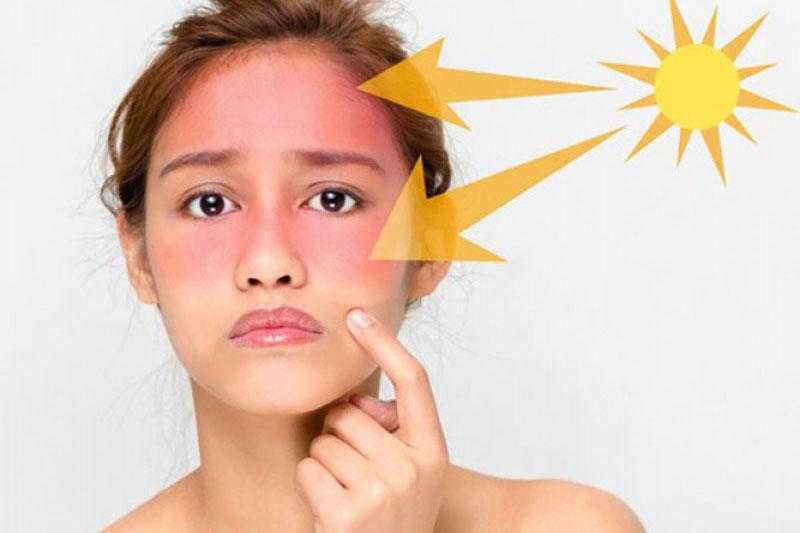 Điều bạn tuyệt đối không nên làm khi da bị cháy nắng